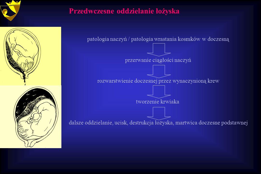 patologia naczyń / patologia wrastania kosmków w doczesną przerwanie ciągłości naczyń rozwarstwienie doczesnej przez wynaczynioną krew tworzenie krwia