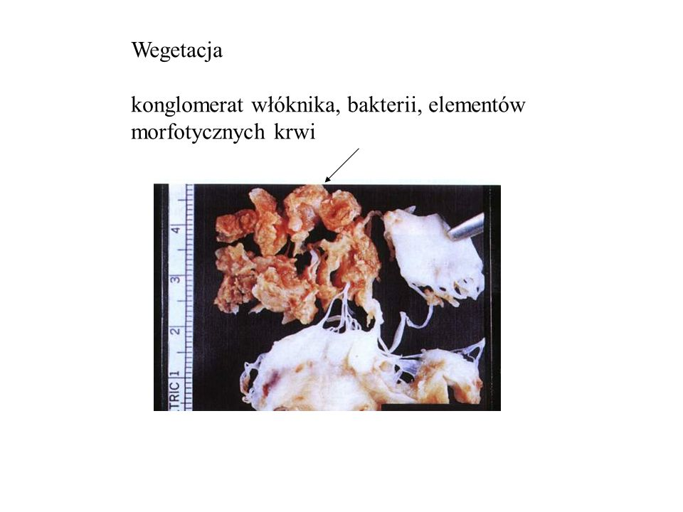 Wegetacja konglomerat włóknika, bakterii, elementów morfotycznych krwi