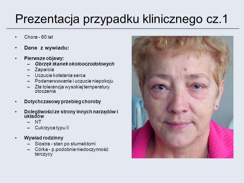Prezentacja przypadku klinicznego cz.1 Chora - 60 lat Dane z wywiadu: Pierwsze objawy: –Obrzęk tkanek okołooczodołowych –Zaparcia –Uczucie kołatania s
