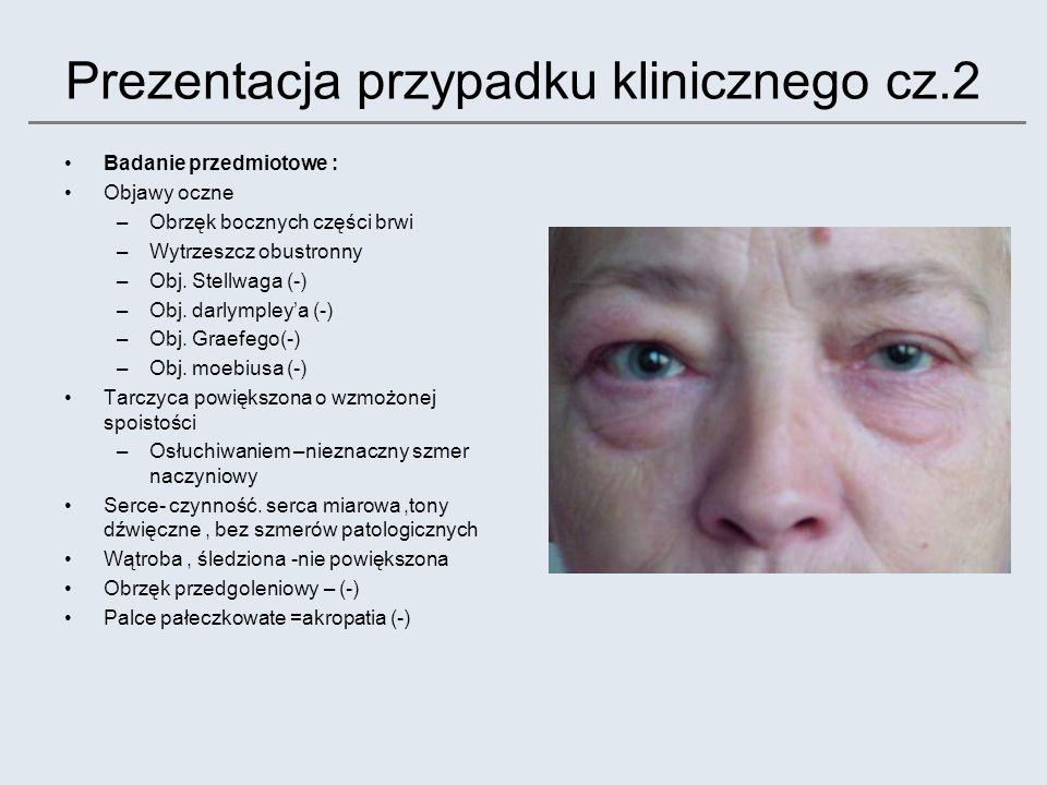 Prezentacja przypadku klinicznego cz.2 Badanie przedmiotowe : Objawy oczne –Obrzęk bocznych części brwi –Wytrzeszcz obustronny –Obj. Stellwaga (-) –Ob