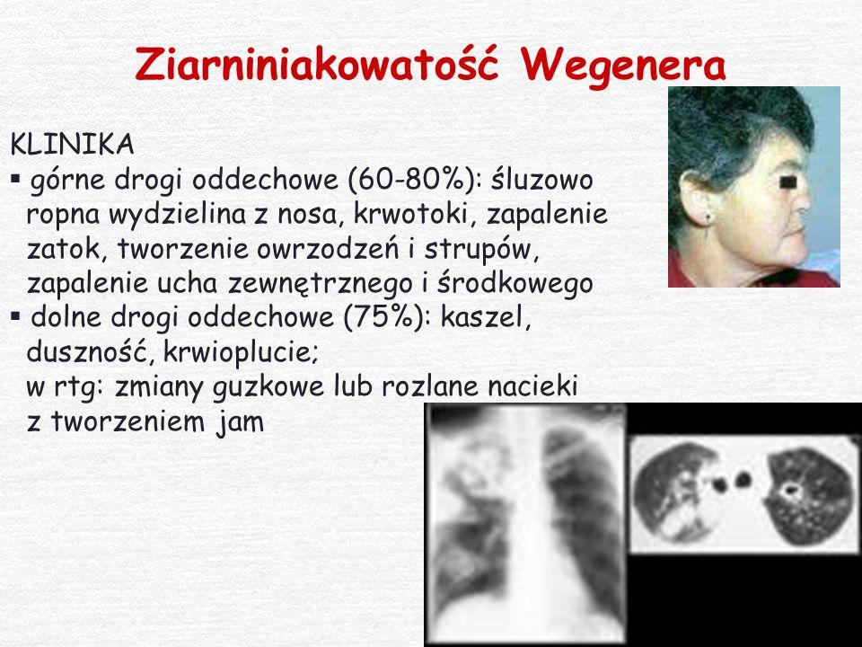 Ziarniniakowatość Wegenera KLINIKA  górne drogi oddechowe (60-80%): śluzowo ropna wydzielina z nosa, krwotoki, zapalenie zatok, tworzenie owrzodzeń i