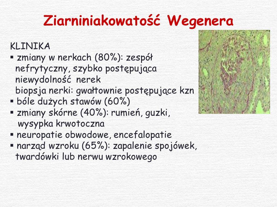 Ziarniniakowatość Wegenera KLINIKA  zmiany w nerkach (80%): zespół nefrytyczny, szybko postępująca niewydolność nerek biopsja nerki: gwałtownie postę