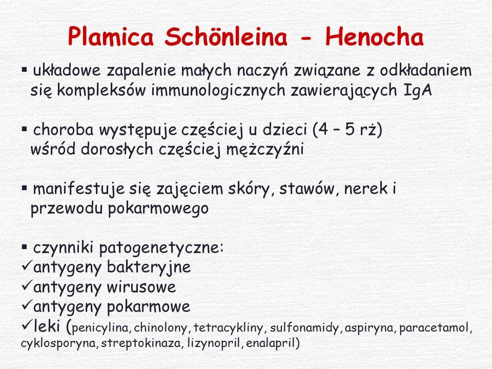 Plamica Schönleina - Henocha  układowe zapalenie małych naczyń związane z odkładaniem się kompleksów immunologicznych zawierających IgA  choroba wys