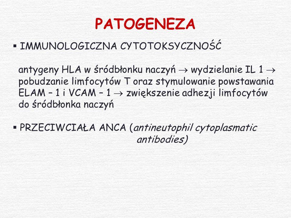 PATOGENEZA  IMMUNOLOGICZNA CYTOTOKSYCZNOŚĆ antygeny HLA w śródbłonku naczyń  wydzielanie IL 1  pobudzanie limfocytów T oraz stymulowanie powstawani