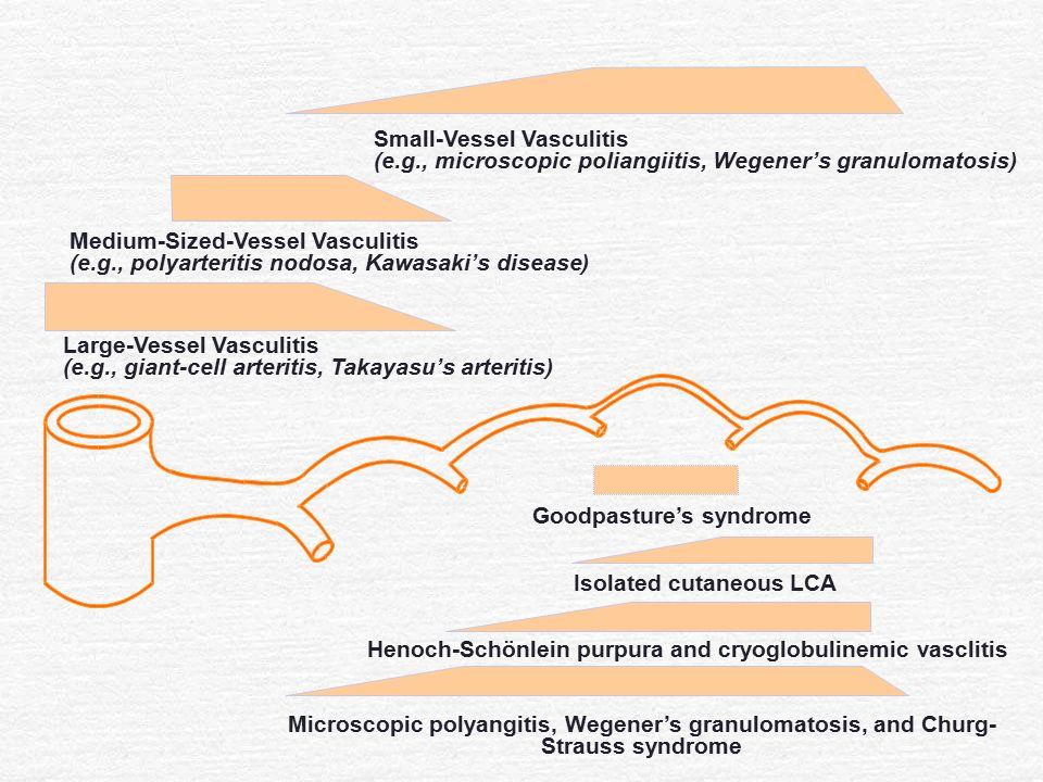 Small-Vessel Vasculitis (e.g., microscopic poliangiitis, Wegener's granulomatosis) Medium-Sized-Vessel Vasculitis (e.g., polyarteritis nodosa, Kawasak