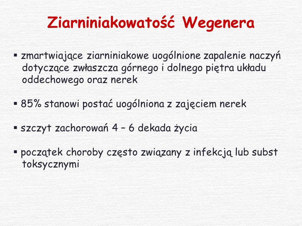 Ziarniniakowatość Wegenera  zmartwiające ziarniniakowe uogólnione zapalenie naczyń dotyczące zwłaszcza górnego i dolnego piętra układu oddechowego or