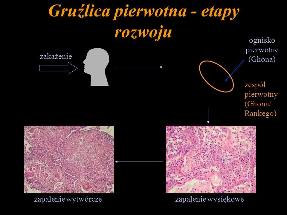 Gruźlica pierwotna - etapy rozwoju zakażenie ognisko pierwotne (Ghona) zapalenie wysiękowezapalenie wytwórcze zespół pierwotny (Ghona/ Rankego)