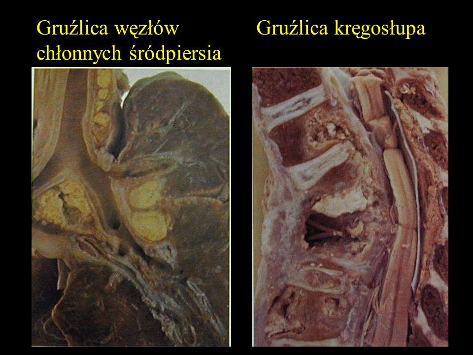 Gruźlica węzłów chłonnych śródpiersia Gruźlica kręgosłupa