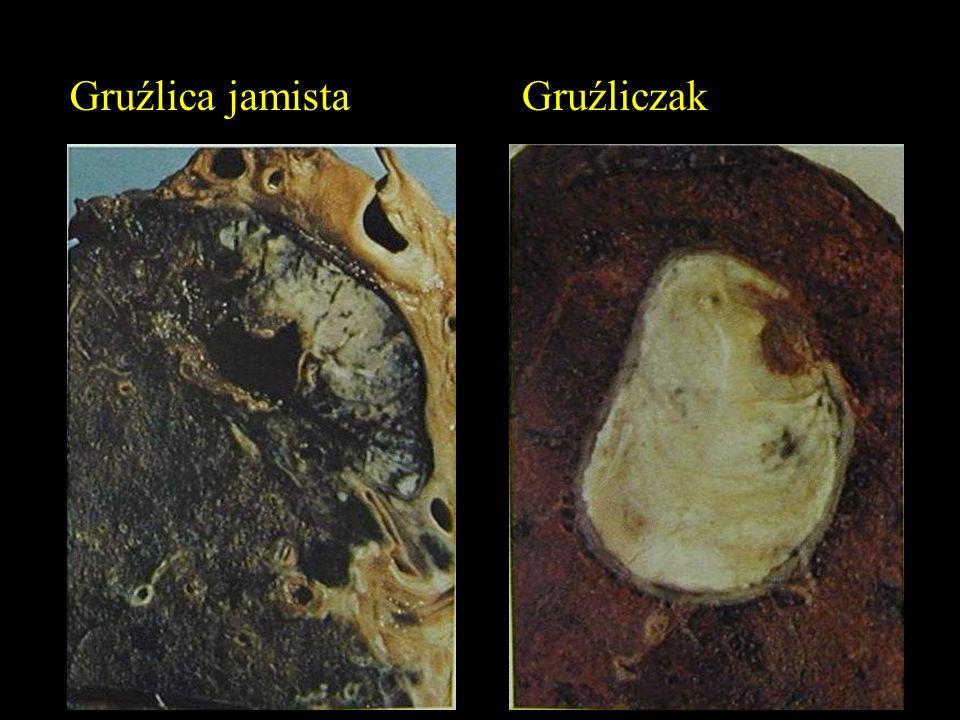 Gruźlica jamistaGruźliczak