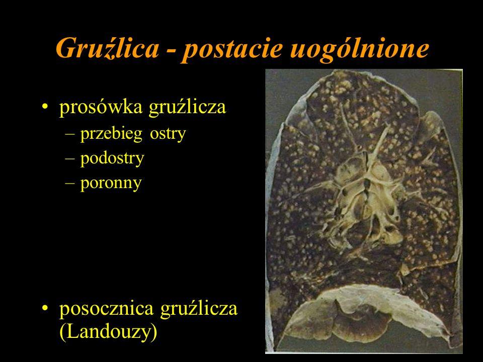 Gruźlica - postacie uogólnione prosówka gruźlicza –przebieg ostry –podostry –poronny posocznica gruźlicza (Landouzy)