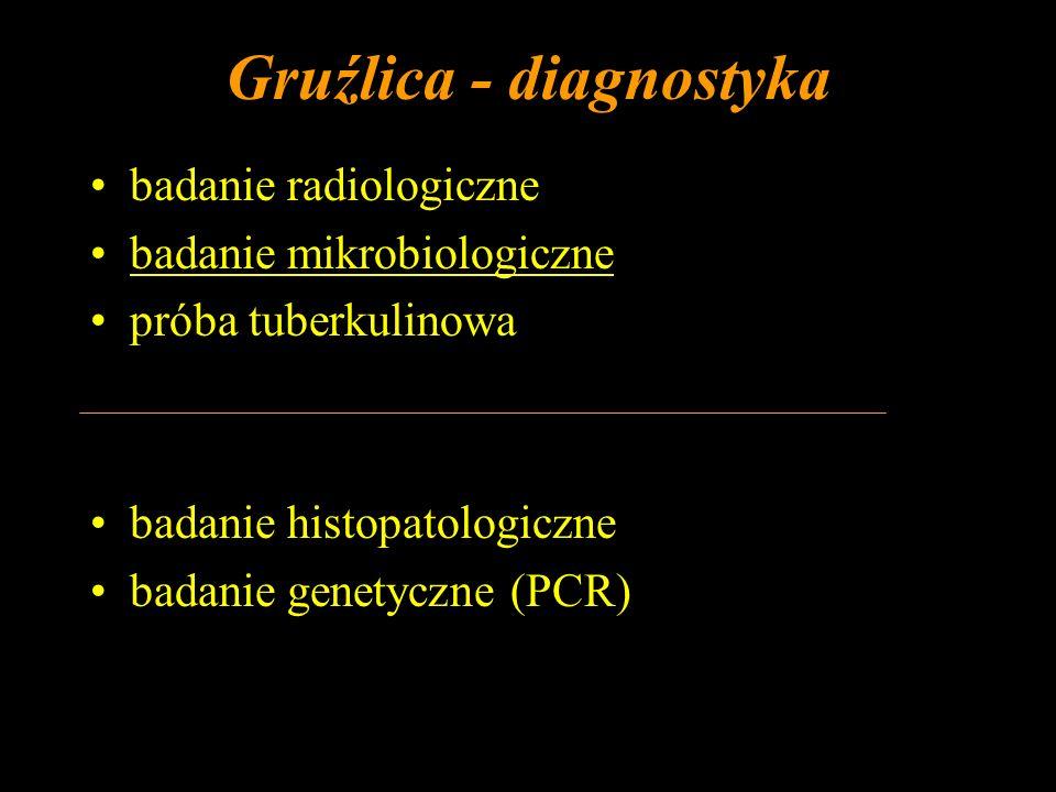 Gruźlica - diagnostyka badanie radiologiczne badanie mikrobiologiczne próba tuberkulinowa badanie histopatologiczne badanie genetyczne (PCR)