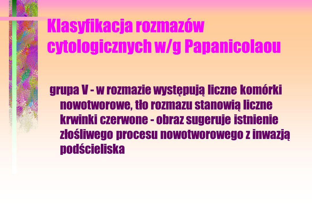 Klasyfikacja rozmazów cytologicznych w/g Papanicolaou grupa V - w rozmazie występują liczne komórki nowotworowe, tło rozmazu stanowią liczne krwinki czerwone - obraz sugeruje istnienie złośliwego procesu nowotworowego z inwazją podścieliska