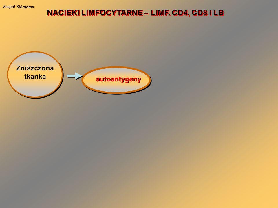 Zniszczona tkanka autoantygeny NACIEKI LIMFOCYTARNE – LIMF. CD4, CD8 I LB Zespół Sjörgrena