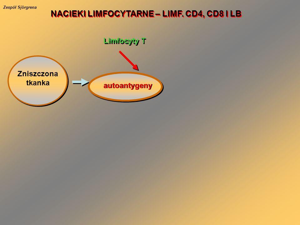 Zniszczona tkanka autoantygeny Limfocyty T NACIEKI LIMFOCYTARNE – LIMF. CD4, CD8 I LB Zespół Sjörgrena
