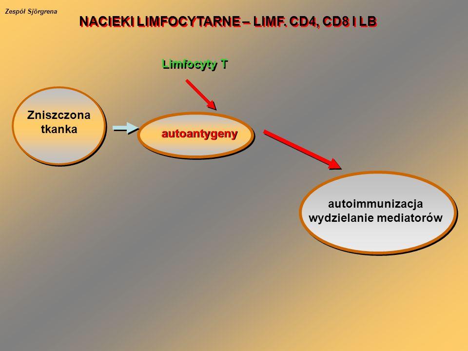 Zniszczona tkanka autoantygeny Limfocyty T autoimmunizacja wydzielanie mediatorów NACIEKI LIMFOCYTARNE – LIMF. CD4, CD8 I LB Zespół Sjörgrena