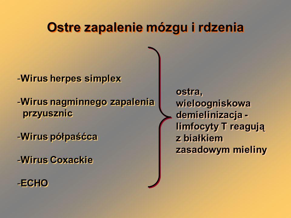 Ostre zapalenie mózgu i rdzenia -Wirus herpes simplex -Wirus nagminnego zapalenia przyusznic -Wirus półpaśćca -Wirus Coxackie -ECHO -Wirus herpes simplex -Wirus nagminnego zapalenia przyusznic -Wirus półpaśćca -Wirus Coxackie -ECHO ostra, wieloogniskowa demielinizacja - limfocyty T reagują z białkiem zasadowym mieliny ostra, wieloogniskowa demielinizacja - limfocyty T reagują z białkiem zasadowym mieliny