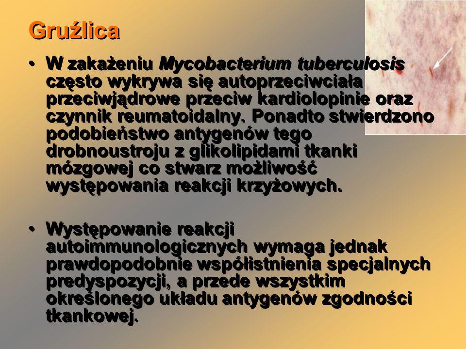 Gruźlica W zakażeniu Mycobacterium tuberculosis często wykrywa się autoprzeciwciała przeciwjądrowe przeciw kardiolopinie oraz czynnik reumatoidalny.