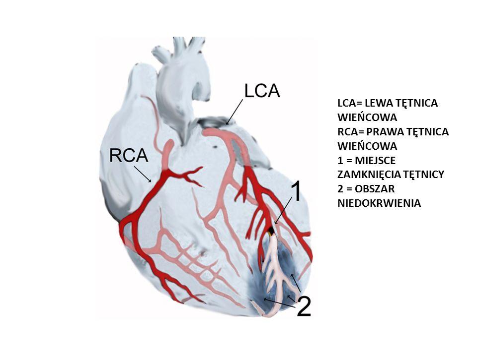 LCA= LEWA TĘTNICA WIEŃCOWA RCA= PRAWA TĘTNICA WIEŃCOWA 1 = MIEJSCE ZAMKNIĘCIA TĘTNICY 2 = OBSZAR NIEDOKRWIENIA