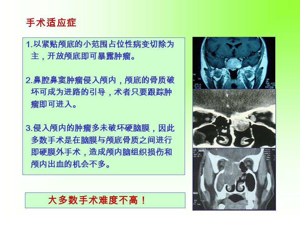 1.以紧贴颅底的小范围占位性病变切除为 主,开放颅底即可暴露肿瘤。 2. 鼻腔鼻窦肿瘤侵入颅内,颅底的骨质破 坏可成为进路的引导,术者只要跟踪肿 瘤即可进入。 3.