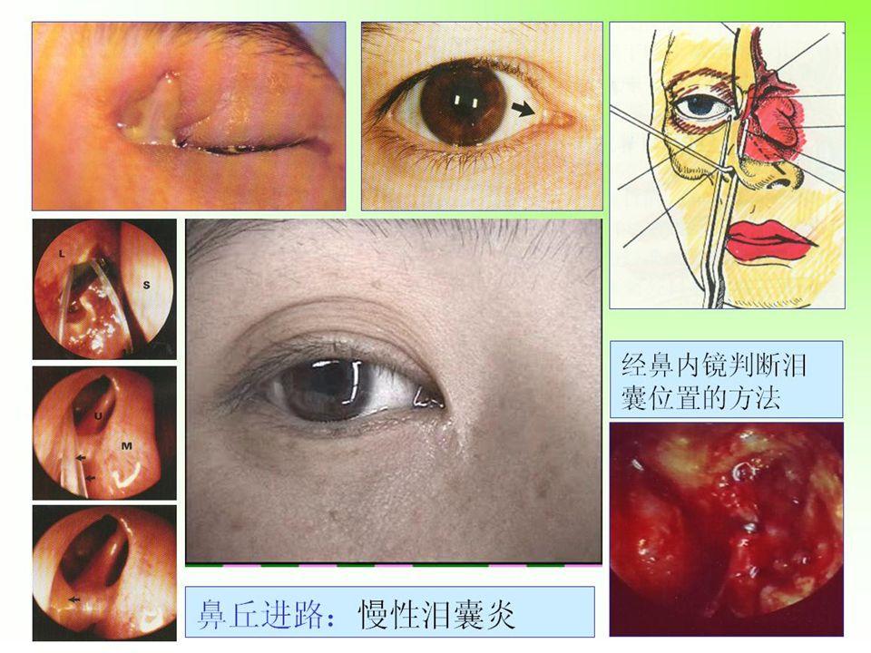 1992-2004 年经鼻内镜鼻眼相关手术 211 例 ● 视神经减压 131 (视力改善 51% ) ● 鼻腔泪囊开放 64 ● 眶减压 6 ● 眶内异物取出 4 ● 眶内占位性病变切除 6