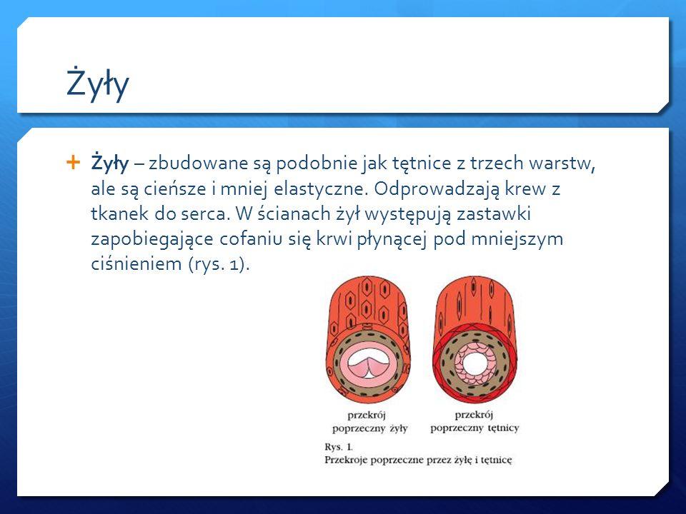 Choroby układu krwionośnego Przykładami chorób układu krwionośnego są:  tętniak i żylak, tętniak i żylak,  miażdżyca, miażdżyca,  żylna choroba zakrzepowo-zatorowa, żylna choroba zakrzepowo-zatorowa,  choroba Bürgera, czyli zakrzepowo-zarostowe zapalenie tętnic, choroba Bürgera, czyli zakrzepowo-zarostowe zapalenie tętnic,  zespół Takayasu, zespół Takayasu,  choroba Kawasakiego, choroba Kawasakiego,  choroba Raynauda.
