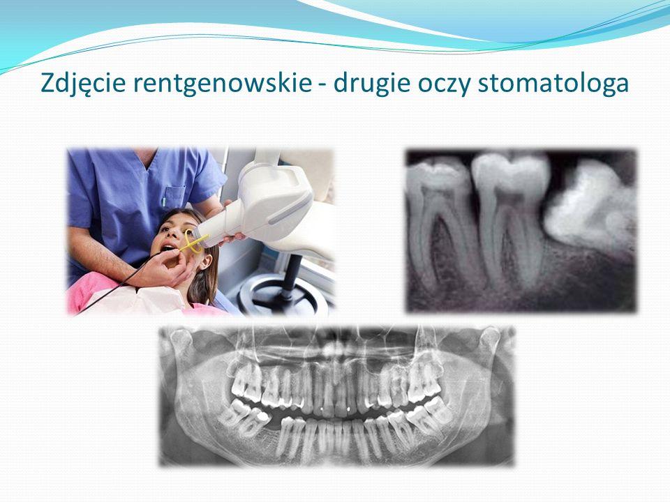 Zdjęcie rentgenowskie - drugie oczy stomatologa