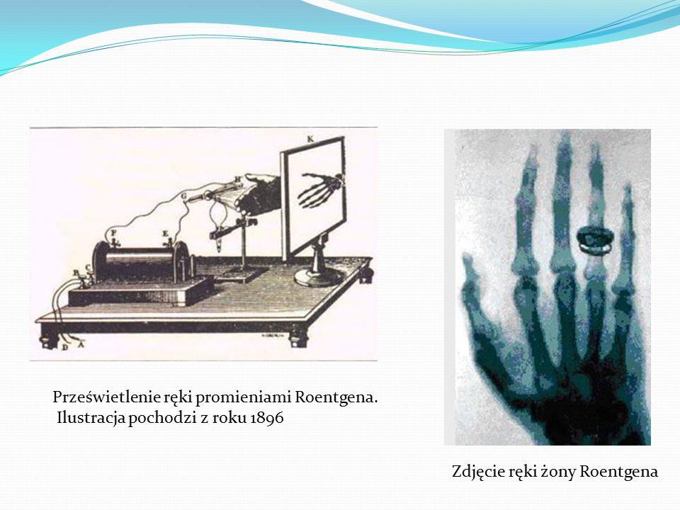 Zdjęcie ręki żony Roentgena Prześwietlenie ręki promieniami Roentgena.