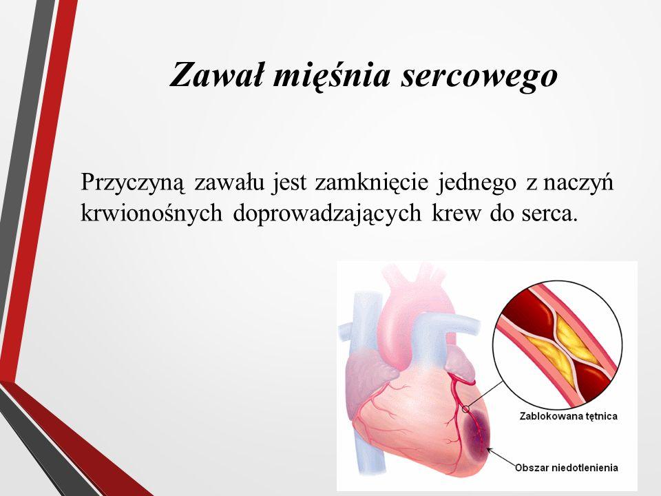 Zawał mięśnia sercowego Przyczyną zawału jest zamknięcie jednego z naczyń krwionośnych doprowadzających krew do serca.