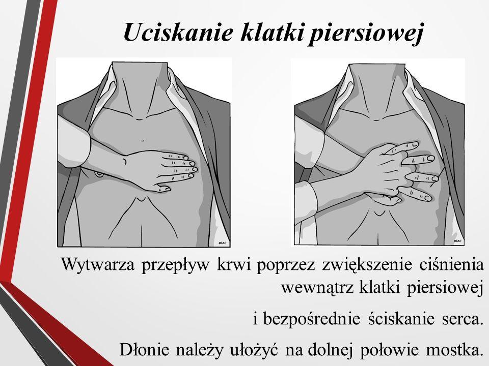 Uciskanie klatki piersiowej Wytwarza przepływ krwi poprzez zwiększenie ciśnienia wewnątrz klatki piersiowej i bezpośrednie ściskanie serca. Dłonie nal