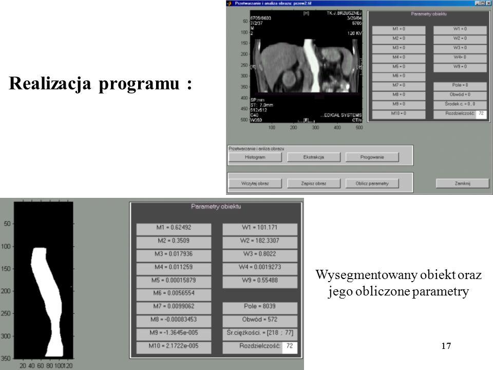 17 Realizacja programu : Wysegmentowany obiekt oraz jego obliczone parametry