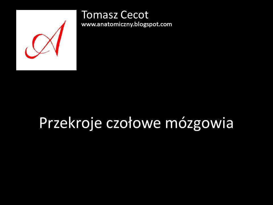 Przekroje czołowe mózgowia Tomasz Cecot www.anatomiczny.blogspot.com