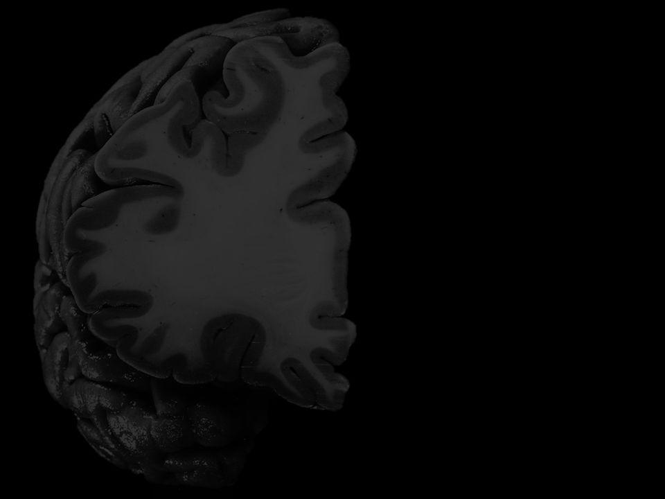 Rycina 2 Kolano ciała modzelowatego Kora wyspy Torebka ostatnia Przedmurze Torebka zewnętrzna Skorupa Torebka wewnętrzna Głowa jądra ogoniastego Róg przedni komory bocznej KOMORY CIAŁO MODZELOWATE STANDARD Gałka blada