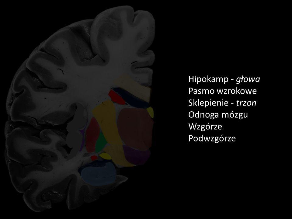 Rycina 5 Pień ciała modzelowatego Kora wyspy Torebka ostatnia Przedmurze Torebka zewnętrzna Skorupa Torebka wewnętrzna Trzon jądra ogoniastego Część środkowa komory bocznej Gałka blada Róg dolny komory bocznej KOMORY STANDARD CIAŁO MODZELOWATE Ogon jądra ogoniastego Hipokamp - głowa Pasmo wzrokowe Sklepienie - trzon Odnoga mózgu Podwzgórze Wzgórze