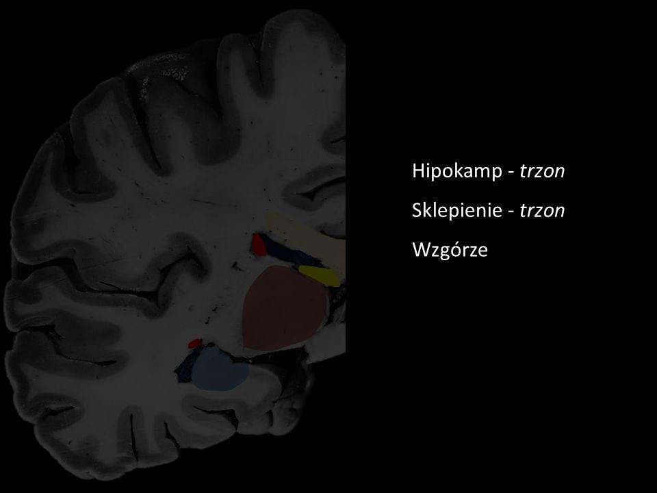 Rycina 7 Trzon ciała modzelowatego Część środkowa komory bocznej Róg dolny komory bocznej KOMORY CIAŁO MODZELOWATE Trzon jądra ogoniastego Ogon jądra ogoniastego Hipokamp - trzon Sklepienie - trzon Wzgórze