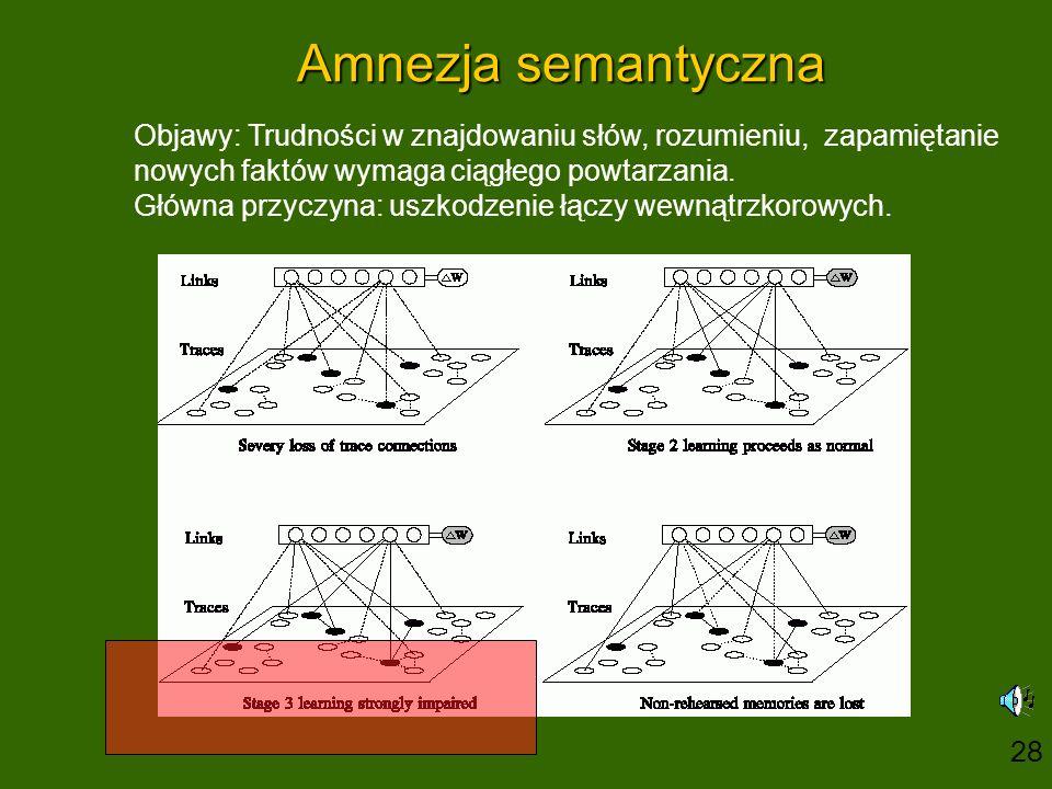 Amnezja semantyczna Objawy: Trudności w znajdowaniu słów, rozumieniu, zapamiętanie nowych faktów wymaga ciągłego powtarzania. Główna przyczyna: uszkod