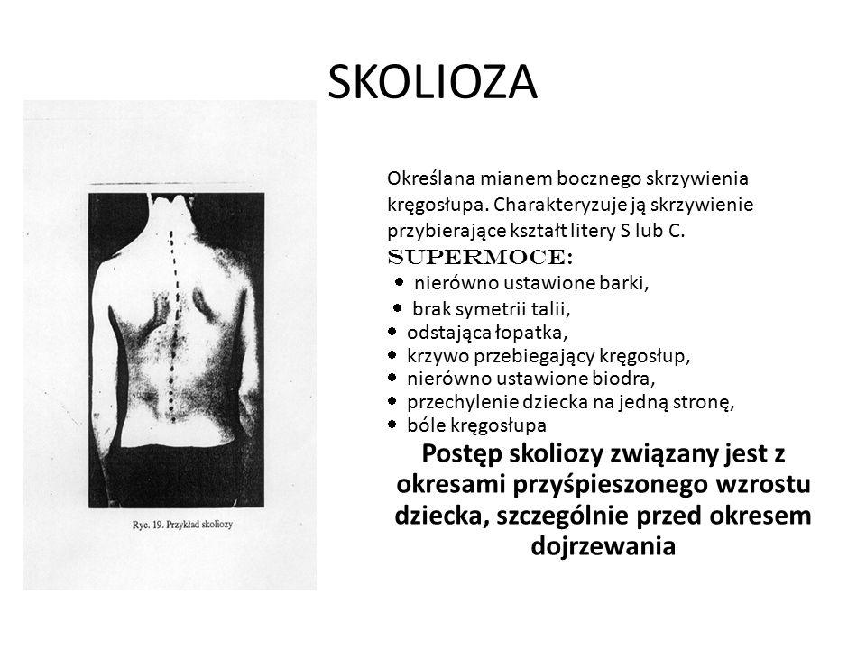 SKOLIOZA Określana mianem bocznego skrzywienia kręgosłupa. Charakteryzuje ją skrzywienie przybierające kształt litery S lub C. SUPERMOCE:  nierówno u