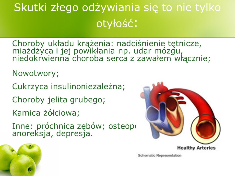 Skutki złego odżywiania się to nie tylko otyłość : Choroby układu krążenia: nadciśnienie tętnicze, miażdżyca i jej powikłania np.
