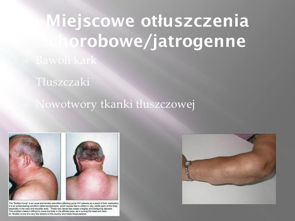 Miejscowe ot ł uszczenia chorobowe/jatrogenne  Bawoli kark  Tłuszczaki  Nowotwory tkanki tłuszczowej