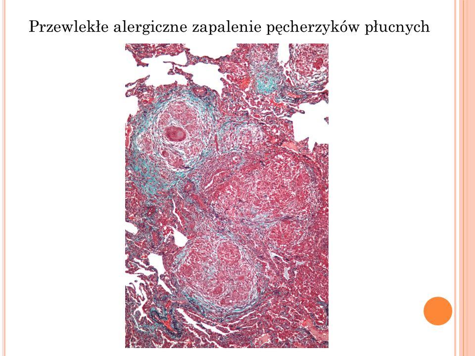 Przewlekłe alergiczne zapalenie pęcherzyków płucnych
