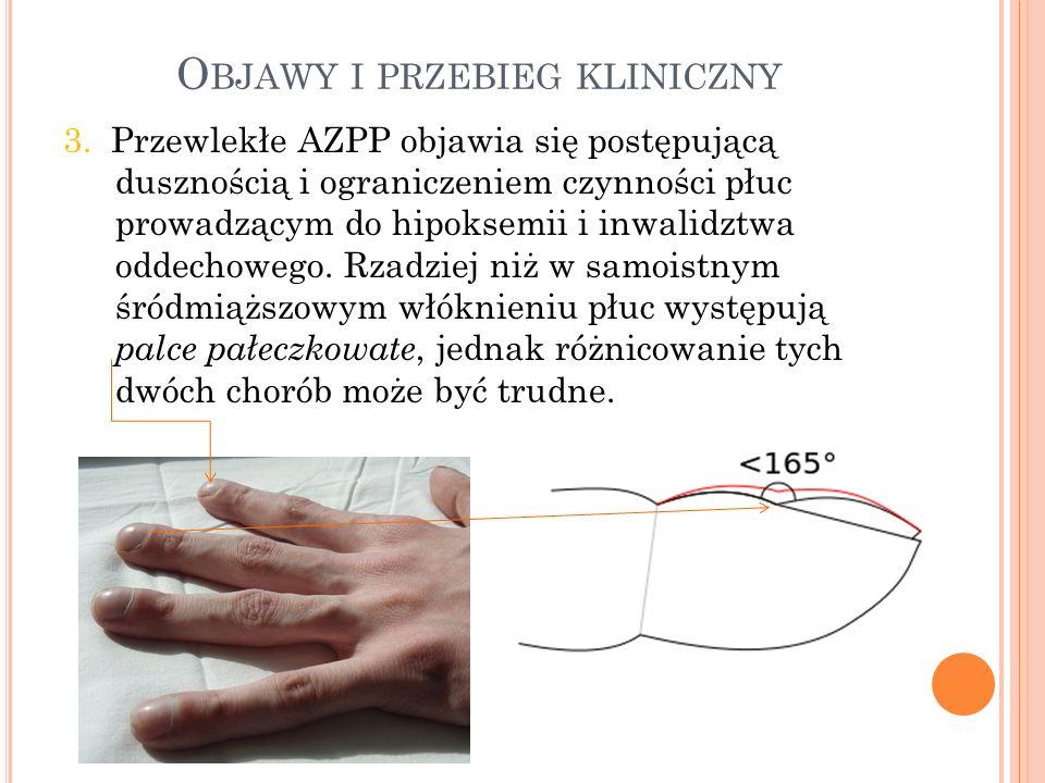 O BJAWY I PRZEBIEG KLINICZNY 3.