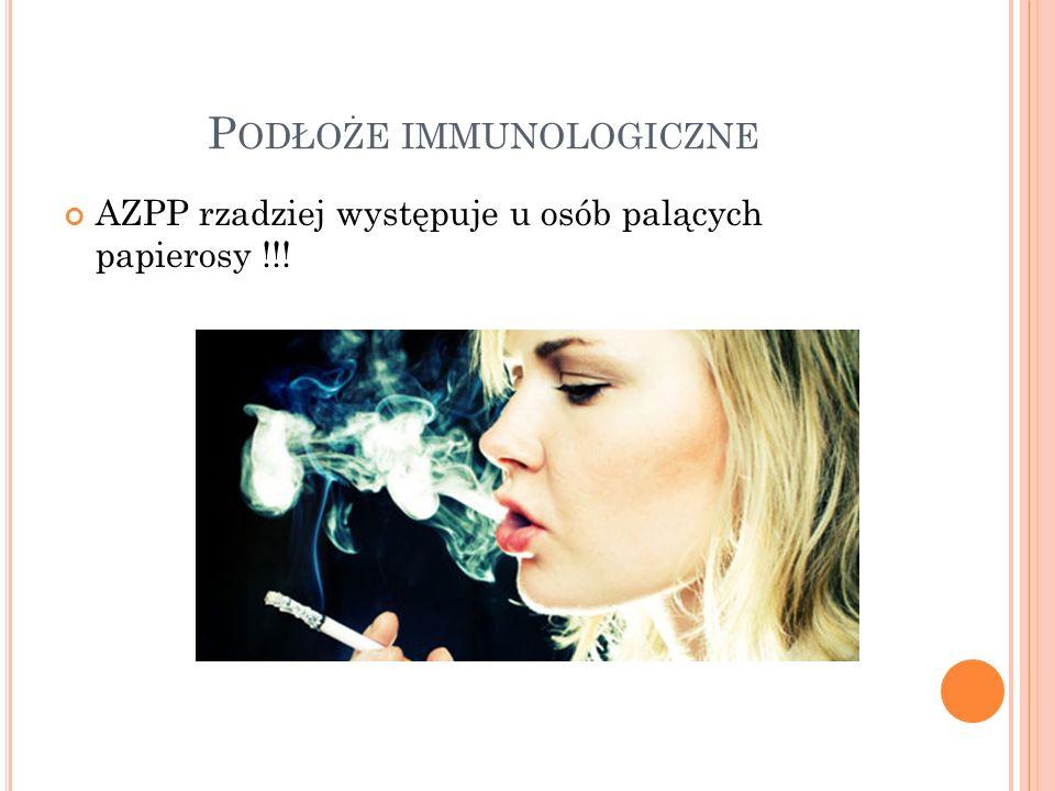 AZPP rzadziej występuje u osób palących papierosy !!!