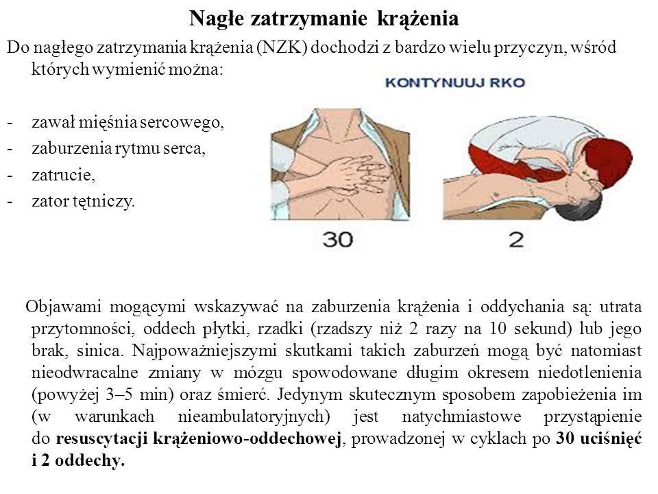 Nagłe zatrzymanie krążenia Do nagłego zatrzymania krążenia (NZK) dochodzi z bardzo wielu przyczyn, wśród których wymienić można: -zawał mięśnia sercowego, -zaburzenia rytmu serca, -zatrucie, -zator tętniczy.