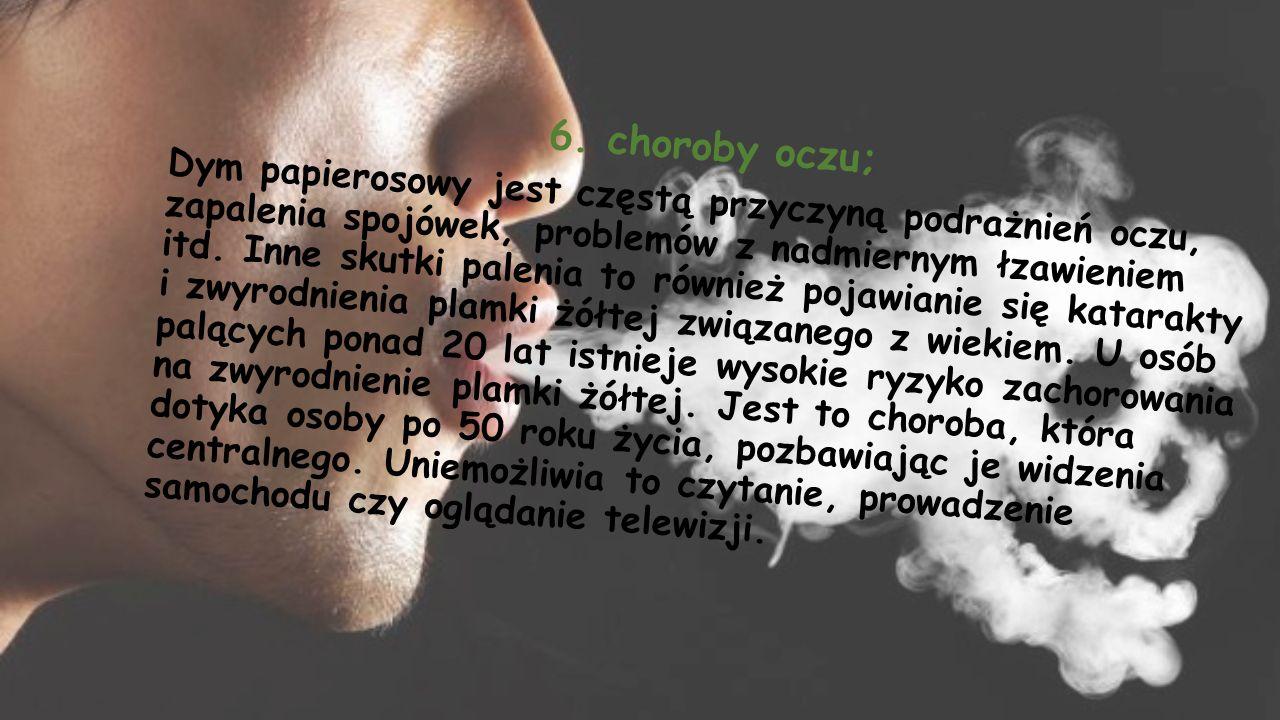 6. choroby oczu; Dym papierosowy jest częstą przyczyną podrażnień oczu, zapalenia spojówek, problemów z nadmiernym łzawieniem itd. Inne skutki palenia