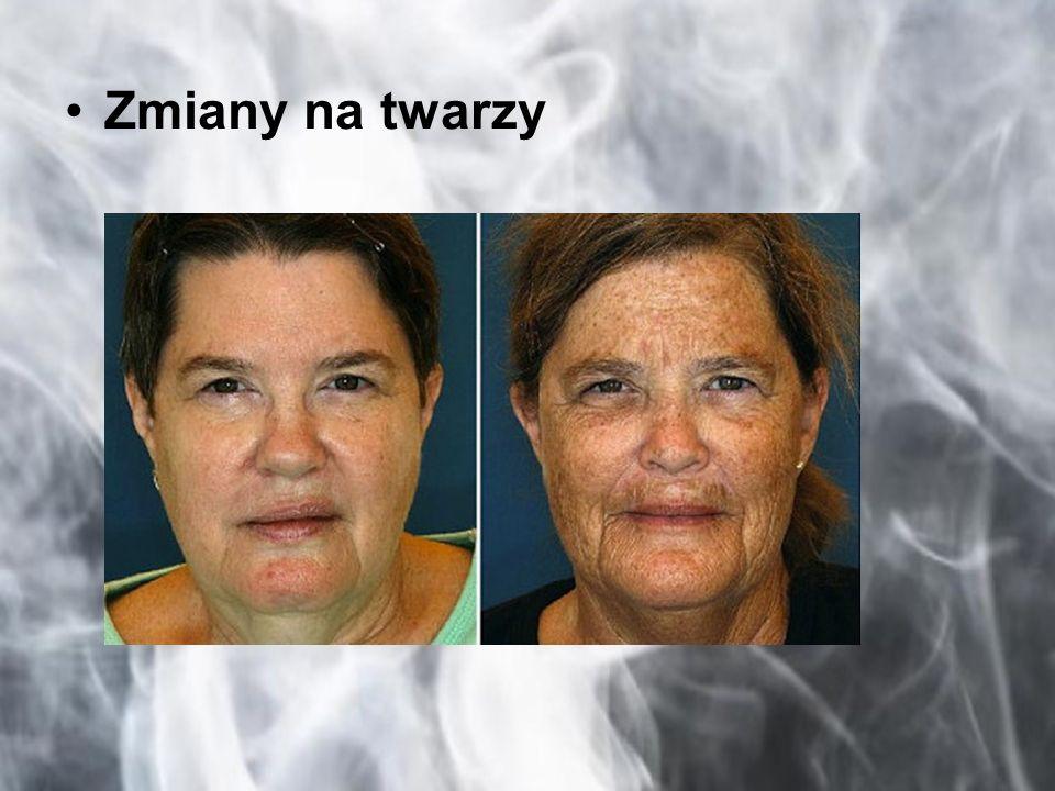 Zmiany na twarzy