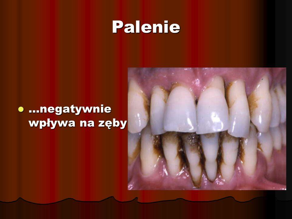 Palenie …negatywnie wpływa na zęby …negatywnie wpływa na zęby