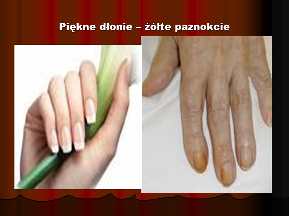 Piękne dłonie – żółte paznokcie