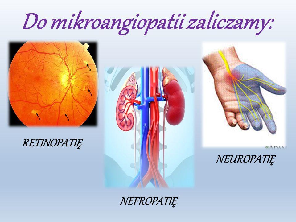 Do mikroangiopatii zaliczamy: RETINOPATIĘ NEUROPATIĘ NEFROPATIĘ