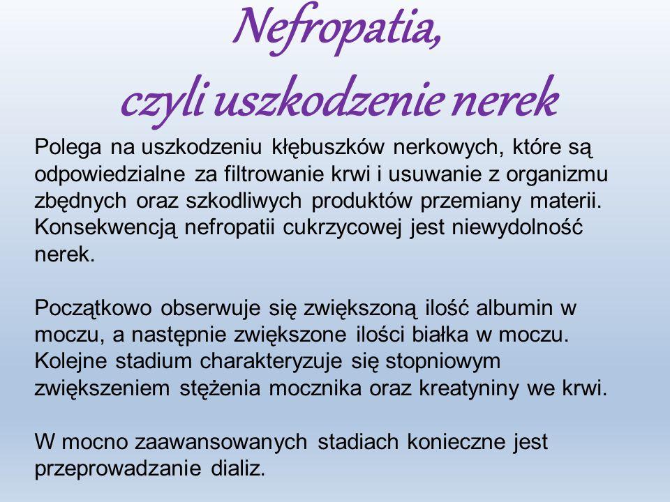 Nefropatia, czyli uszkodzenie nerek Polega na uszkodzeniu kłębuszków nerkowych, które są odpowiedzialne za filtrowanie krwi i usuwanie z organizmu zbędnych oraz szkodliwych produktów przemiany materii.
