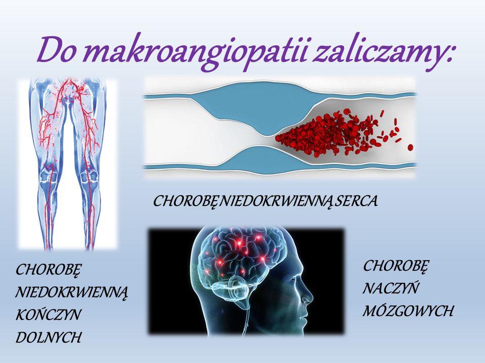 Do makroangiopatii zaliczamy: CHOROBĘ NIEDOKRWIENNĄ KOŃCZYN DOLNYCH CHOROBĘ NIEDOKRWIENNĄ SERCA CHOROBĘ NACZYŃ MÓZGOWYCH