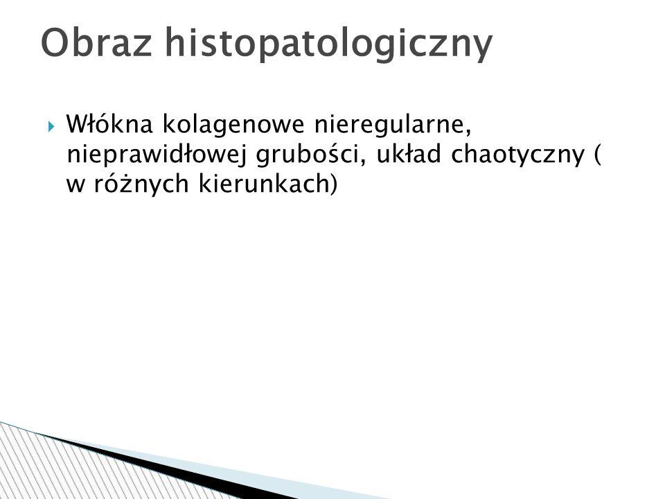  Włókna kolagenowe nieregularne, nieprawidłowej grubości, układ chaotyczny ( w różnych kierunkach) Obraz histopatologiczny